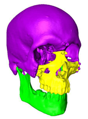 A graphic used by Chad Gordon's computer-assisted planning system for face transplants.