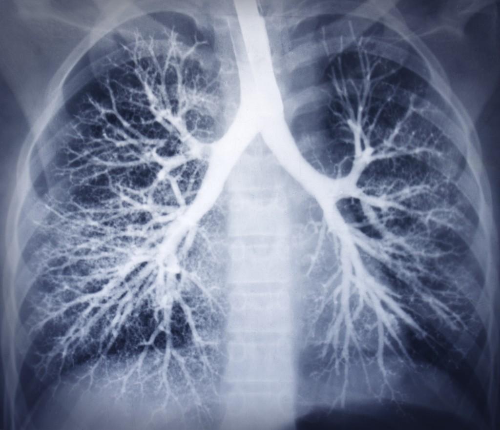 Bronchoscopy image. Chest X-ray.