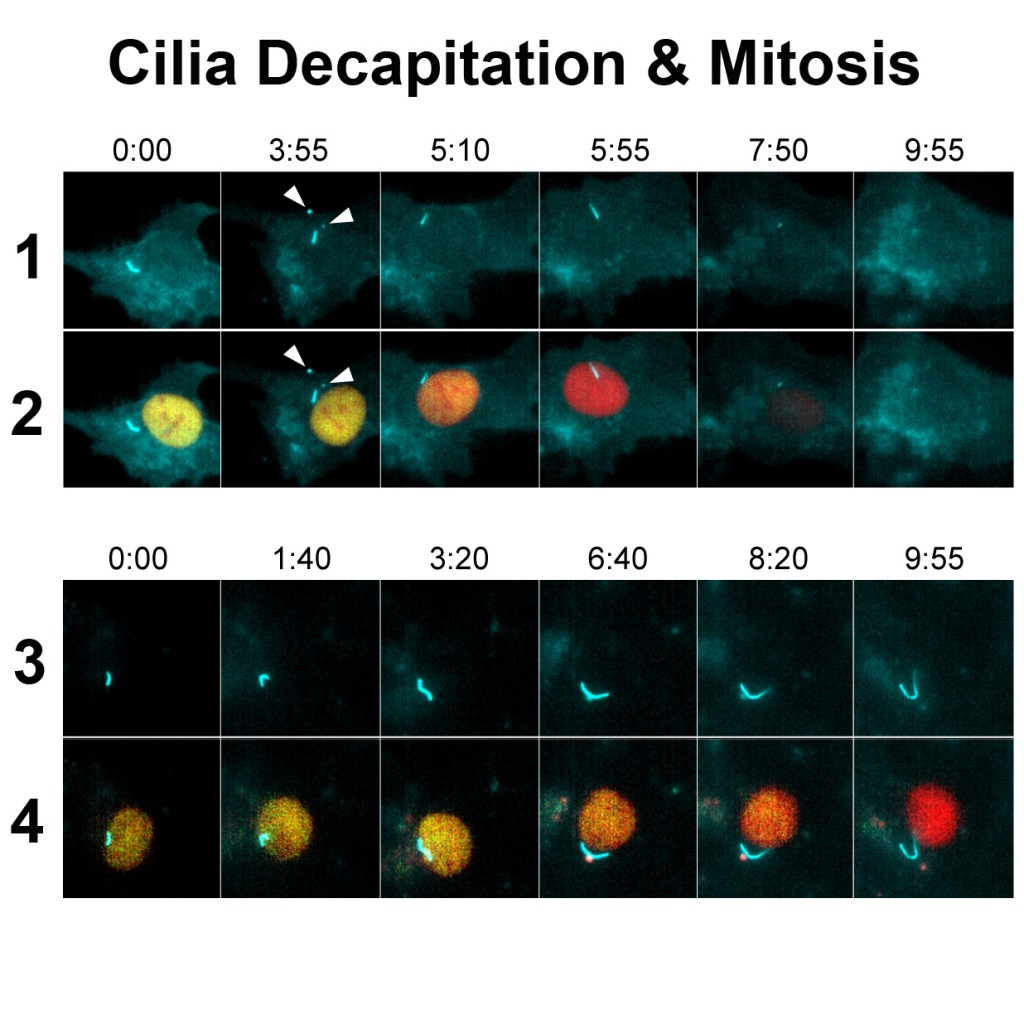 """In normal cells (top panels), cilia decapitation (minute 3:55) usually occurs while cells are in the quiescent state (yellow nuclei) before they transition into mitosis (dark nuclei, minute 7:50). When cilia are prevented from forming """"actin wires"""" (bottom panels), they are also unable to decapitate, causing their cells to transition more slowly from quiescence to mitosis. Credit: Courtesy of Cell Press"""